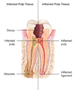 Root Canal Therapy in Pittsburgh, PA - Three Rivers Endodontics