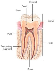 Cracked Tooth Diagram 1